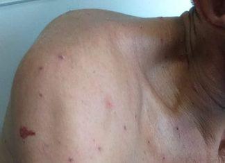 Homem recebeu muitas picadas de abelhas. Foto: Samu/Divulgação