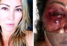 Elaine Perez Caparroz antes e depois das agressões. Foto: Reprodução/TV Globo