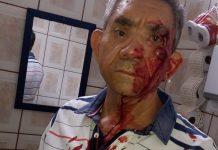 Professor ficou ensanguentado após ser agredido. Foto: Arquivo pessoal