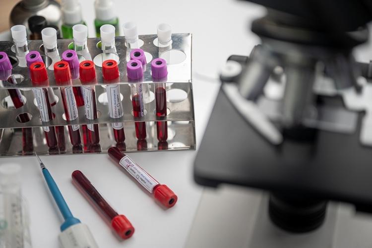 Estudiosos tentam desenvolver vacina contra coronavírus. Foto: Pixabay