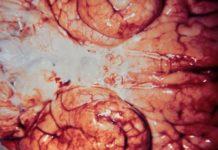 Meningoencefalite amebiana primária tem alto índice de letalidade. Foto: Reprodução