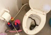 Jovem é picado no pênis por píton ao se sentar em vaso sanitário. Foto: Reprodução